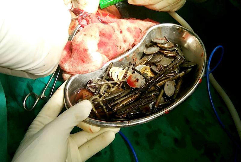 Doctors Remove Coins, Nails, Glass From Man's Stomach