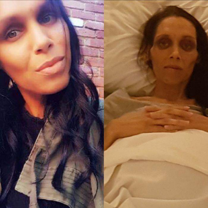 """Nicole Yarran was previously told that she was 'too young' for bowel cancer, and instead was diagnosed with (IBS). <em>(Photo: <a href=""""https://www.facebook.com/TheHealthCareSurvivor/photos/a.544805788865959.132889.118740644805811/1763482603664932/?type=3&theater"""" rel=""""nofollow noopener"""" target=""""_blank"""" data-ylk=""""slk:Facebook"""" class=""""link rapid-noclick-resp"""">Facebook</a>).</em>"""