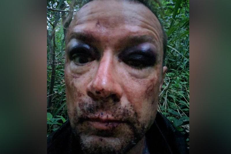 Mr Antalffy took a selfie in the jungle after a crash
