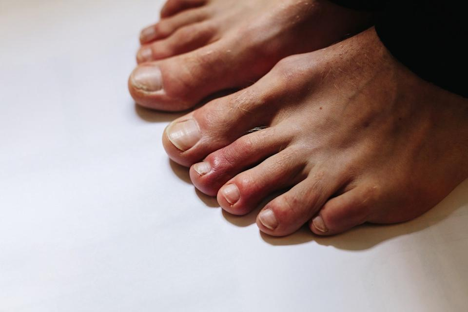 COVID toes, Painful red and purple bumps that tend to occur at the tips of the toes