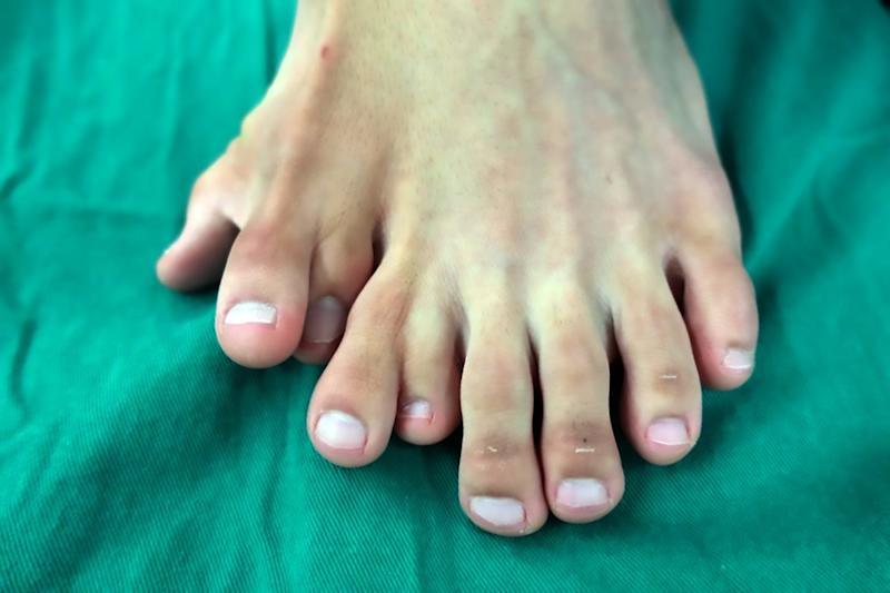 The 21-year-old man wass born with nine toes on one foot. (AsiaWire)