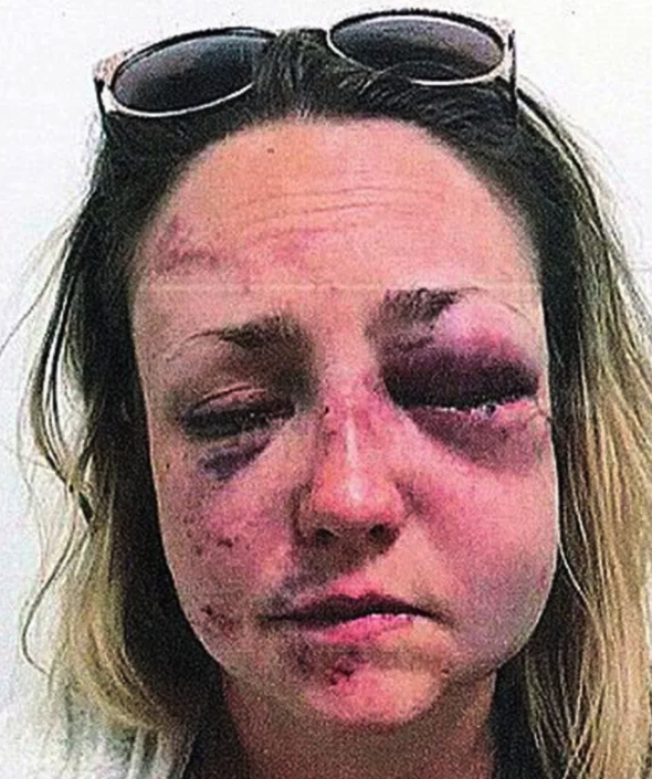 His victim was left with permanent damage to her eyes (Police handout)