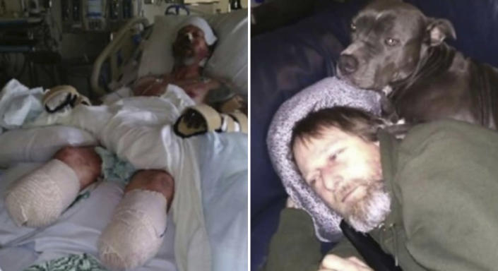 (Left) Greg Manteufel lays in his hospital bed at Froedtert Hospital in Milwaukee and (right) with his beloved pet dog. Source: Greg Manteufel