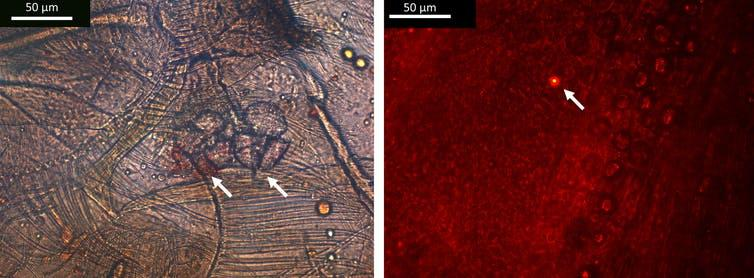 Microscopic images with glowing microplastic highlighted