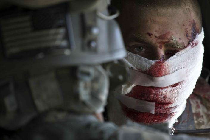Wounded U.S. Marine Sgt. Shane Hanley, center, a squad leader from Easy Company, 2-2 Marines, receives treatment by U.S. Army flight medic Sgt. Michael G. Patangan while airborne in an army Task Force Pegasus medevac helicopter, shortly after Hanley was wounded, in Helmand province, southern Afghanistan on Feb. 9, 2010. Sgt. Hanley, of Punxsutawney, Pa., who agreed to have photos of himself published, sustained shrapnel injuries to the left side of his body, face and eye when an improvised explosive device detonated below him while he was on a foot patrol. (AP Photo/Brennan Linsley, File)