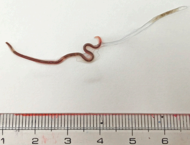 The worm was extracted with tweezers (The American Society of Tropical Medicine and Hygiene)