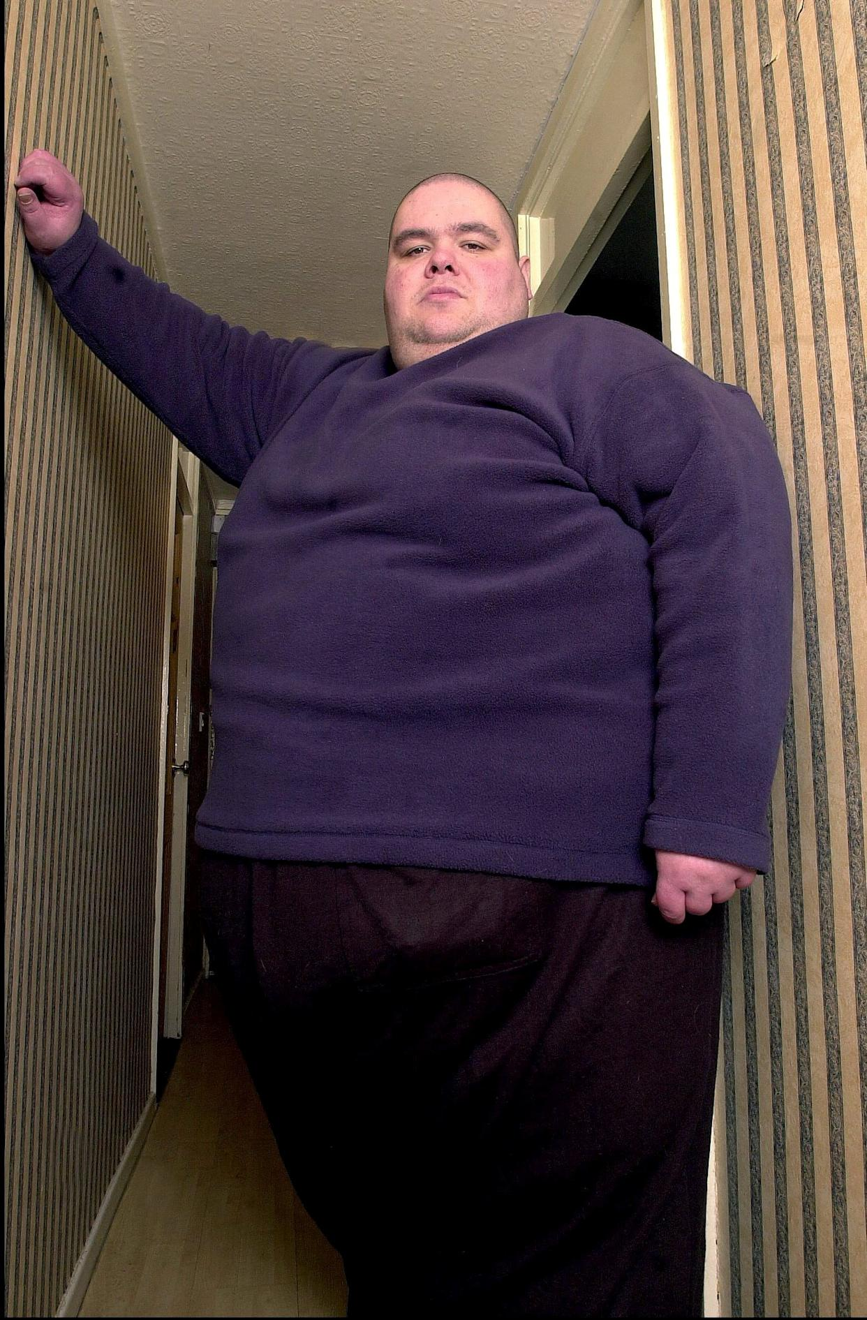 Once known as Britain's fattest man his weight peaked at 65 stone.At one point he consumed up to 29,000 calories and drinking up to 12 litres of fizzy drink in a day. (SWNS)