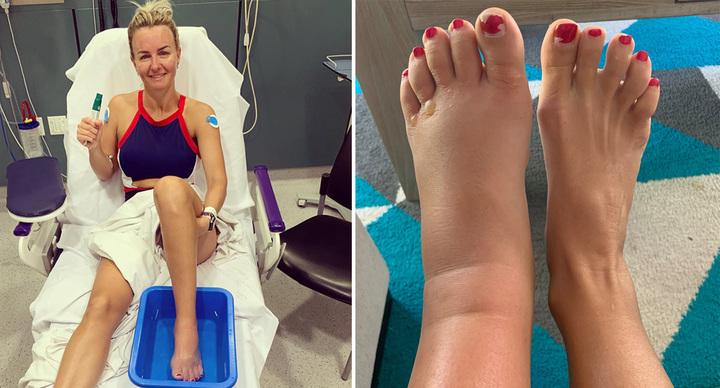 Whitney Jones pictured with an enlarged foot from the venom.