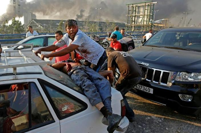 An injured man lies at the back of a car before being rushed away from the scene of a massive explosion at the port (AFP Photo/Marwan TAHTAH)