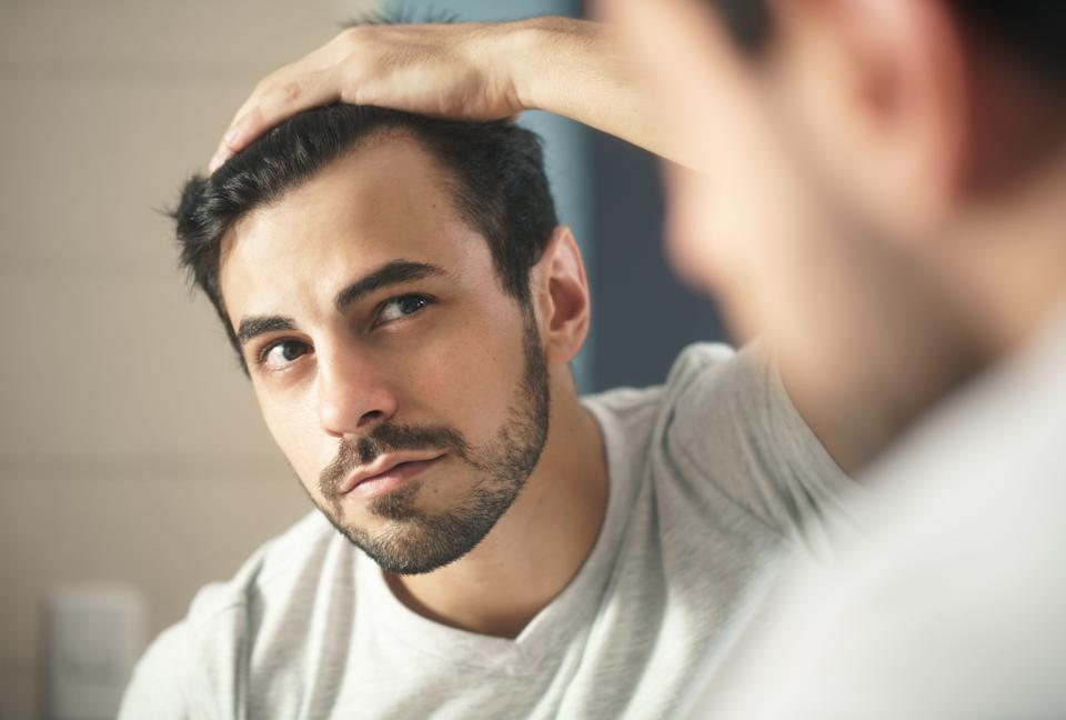 Male pattern hair loss is extremely common. (Getty Images)