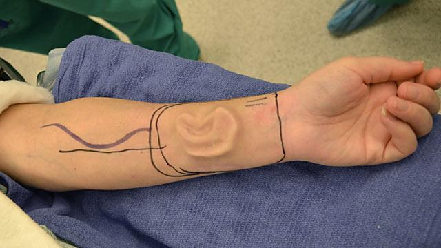 Doctors Grow New Ear on Cancer Victim's Arm