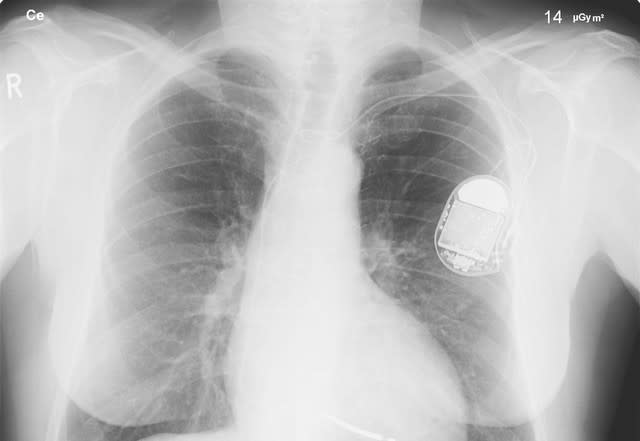 fatal security medical devices pacemaker heart