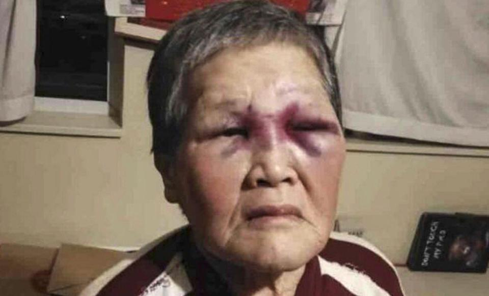 Chinese grandmother Xie Xiaozhen was about to cross the street when her attacker struck. Photo: GoFundMe