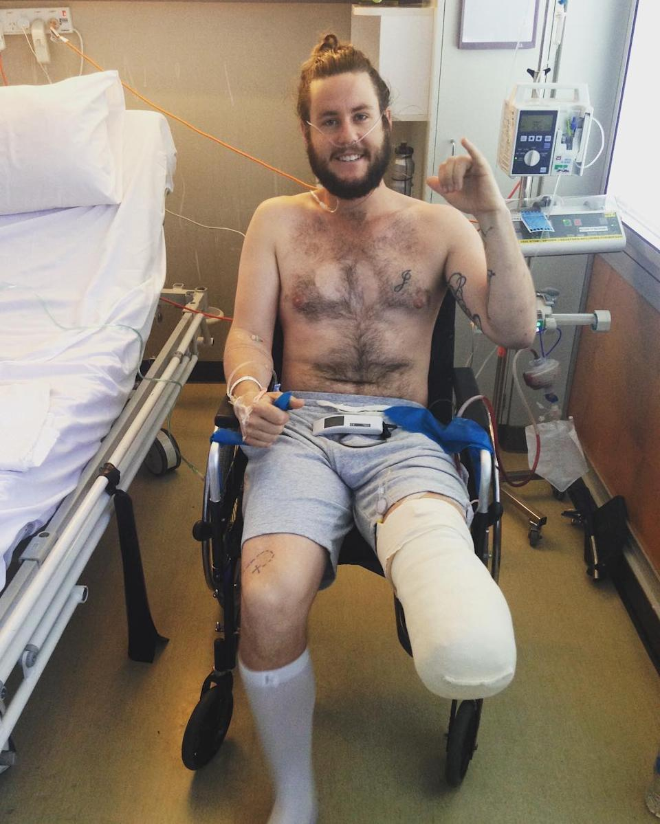 Jed Altschwager sitting in a wheelchair with a bandaged leg after having his lower leg amputated