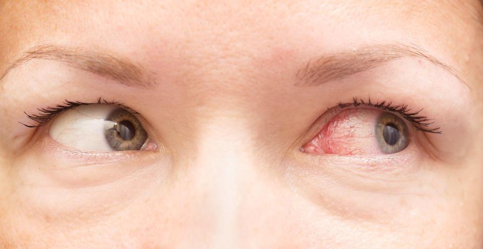 """<p>Uveitis is inflammation of the middle layer of the eye that has blood vessels. This red irritation can signify a wealth <a rel=""""nofollow noopener"""" href=""""https://www.womansday.com/health-fitness/a22487425/yeast-infection-symptoms-in-women/"""" target=""""_blank"""" data-ylk=""""slk:of infections"""" class=""""link rapid-noclick-resp"""">of infections</a> and conditions, such as some sexually transmitted diseases like AIDS. According to <a rel=""""nofollow noopener"""" href=""""https://www.webmd.com/eye-health/common-eye-problems#1"""" target=""""_blank"""" data-ylk=""""slk:WebMD"""" class=""""link rapid-noclick-resp"""">WebMD</a>, those with AIDS may experience uveitis, as well as blurred vision, eye pain, redness, and light sensitivity.</p>"""
