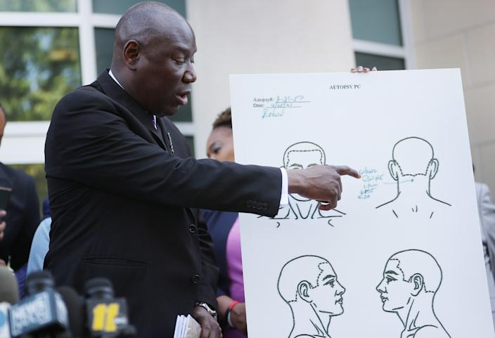 Benjamin Crump, one of the lawyers representing the family of Andrew Brown Jr., points to an image from an autopsy that his team released in Elizabeth City, N.C., Tuesday. (Photo by Joe Raedle/Getty Images)