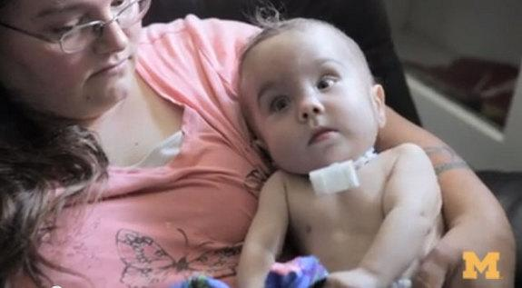 Baby's Life Saved with 3D Printing