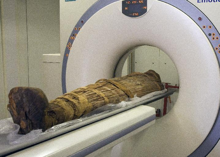 In this undated photo released Sunday March 10, 2013, by a group of cardiologists lead by Saint Luke's Mid America Heart Institute in Kansas City, USA, showing The mummy Hatiay (New Kingdom, 18th Dynasty, 1550 to 1295 BCE) being scanned in CAiro, Egypt, where it was found to have evidence of extensive vascular disease by CT scanning. This scanning is part of a major survey to investigate some 137 mummies which has revealed that people probably had clogged arteries and heart disease some 4,000 years ago. CT scans of 137 mummies showed evidence of atherosclerosis, or hardened arteries, in one third of those examined, including those from ancient people believed to have healthy lifestyles. (AP Photo/Dr. Michael Miyamoto)