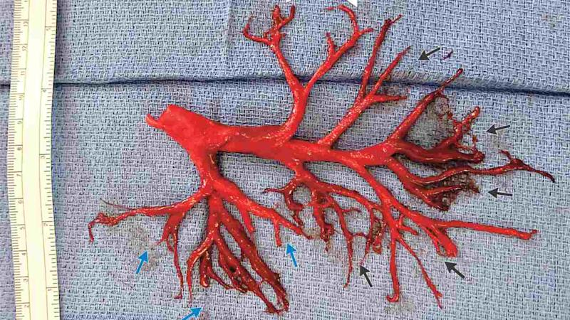 Man coughs up a massive, intact blood clot shaped perfectly like his lung passages