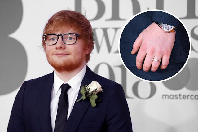 Ed Sheeran and his notable ring. (Photo: Getty Images)