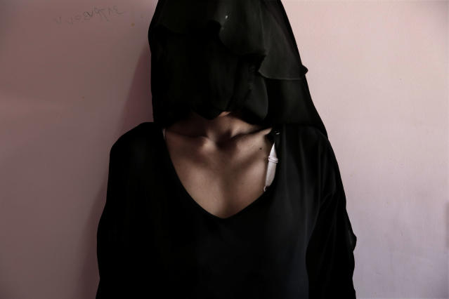 <p>Umm Mizrah, a 25-year-old Yemeni mother, reveals her collarbones and emaciated ribs to be photographed, in this Feb. 13, 2018 photo at Al-Sadaqa Hospital in Aden, Yemen. Umm Mizrah, who is nearly into the second trimester of pregnancy, weighs 38 kilograms (84 pounds) and is severely undernourished. She has been eating one meal a day trying to feed her youngest son, who is badly malnourished. (Photo: Nariman El-Mofty/AP) </p>