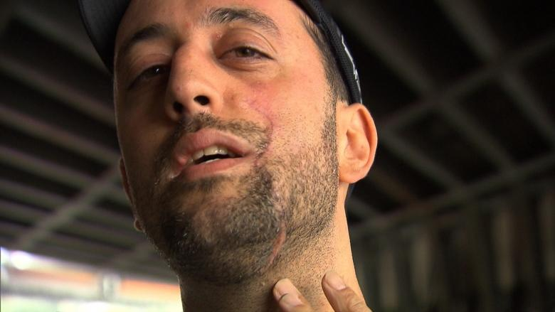 'Rivers and rivers of blood': Montreal cyclist needs 70 stitches after bike path accident