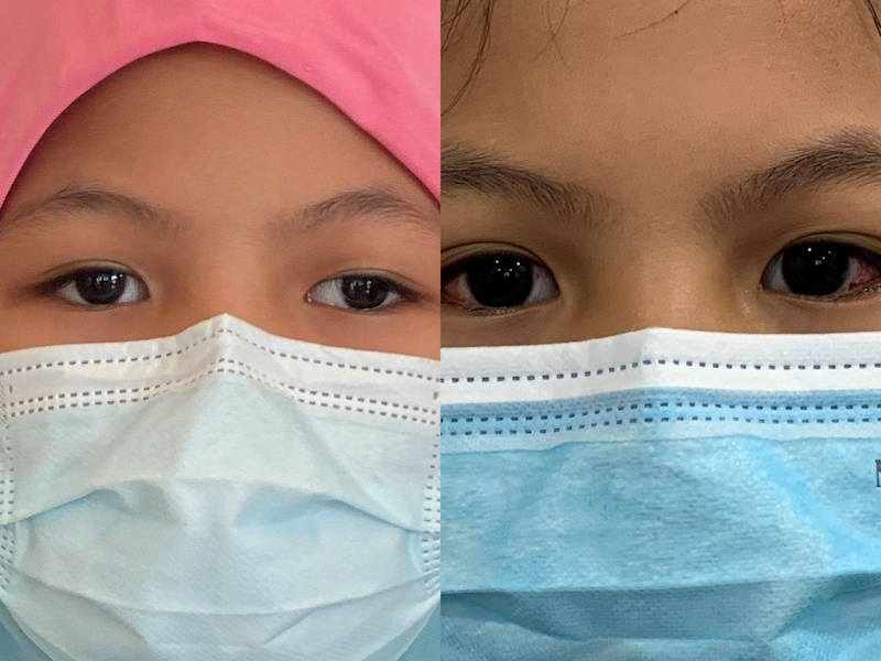 Mia's eyes before (left) and after (right) the squint surgery. — Photo by Jasmin Zainal