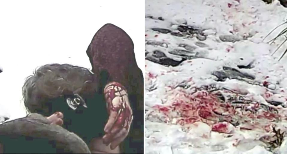 A New York City resident covered in blood pictured on the left after a squirrel attack and on the right the snow-covered ground stained with blood.