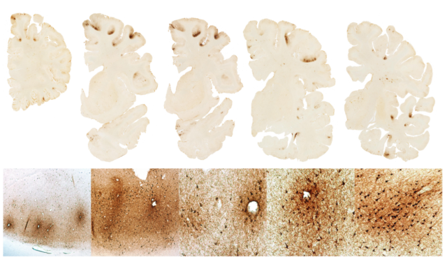 Cross-sections of the brain of Aaron Hernandez, showing areas of tau protein buildup. (BU CTE)