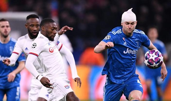 Juventus defender Matthijs de Ligt (R) with his head heavily bandaged after suffering a head wound for which he was off receiving treatment when Lyon scored the only goal of the game (AFP Photo/FRANCK FIFE)