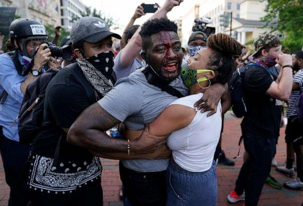 PHOTO: A demonstrator is injured as people protest the death of George Floyd, May 30, 2020, near the White House in Washington, D.C. (Evan Vucci/AP)