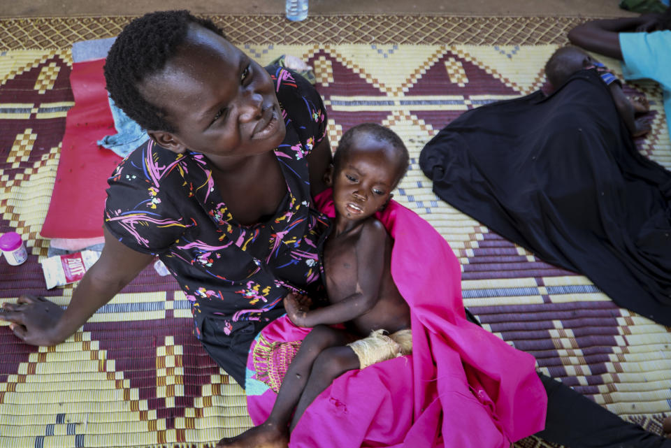 Kombangako Mawa, 19 months, who has been in hospital for one month suffering from edema due to malnutrition, sits on his mother's lap at a feeding center in Al Sabah Children's Hospital in the capital Juba, South Sudan Thursday, Dec. 3, 2020. One county in South Sudan is likely in famine and tens of thousands of people in five other counties are on the brink of starvation, according to a new report released Friday, Dec. 11, 2020 by international food security experts. (AP Photo/Sam Mednick)