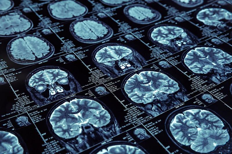 Another Alzheimer's Drug Fails as Lilly, Astra Halt Tests