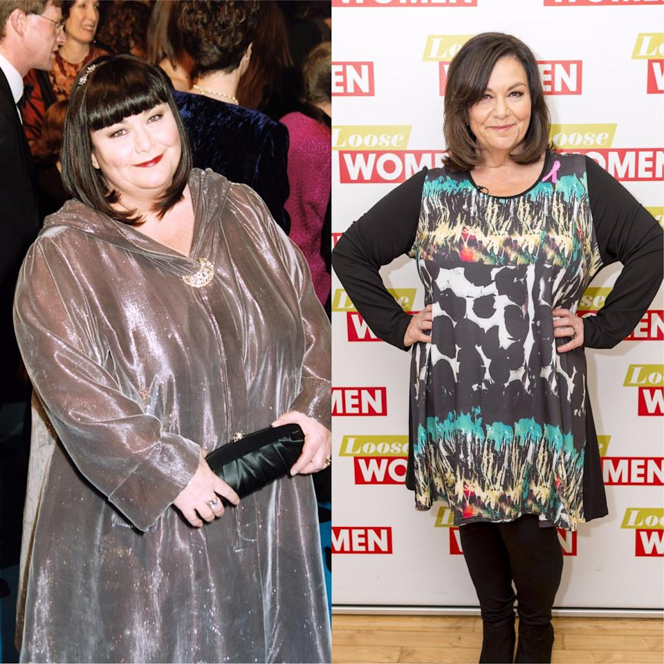 Then and Now: Dawn French in 2005 and 2017. <em>Copyright [Ken McKay/ITV/REX/Shutterstock – Scott Myers/REX/Shutterstock]</em>