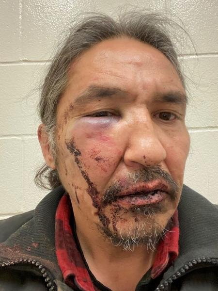 Chief Allan Adam of Athabasca Chipeywan First Nation displays his wounds that he says were caused by the RCMP