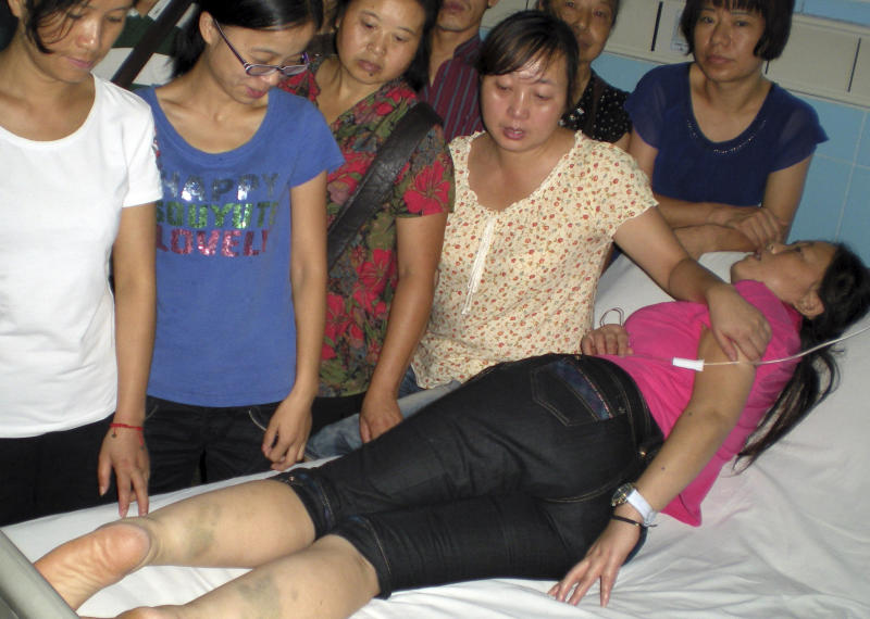 In this Aug. 26, 2011 photo released by  64Tianwang.com, He Xiuhun, foreground, while receiving treatment at a hospital for insufficient blood supply to the brain, shows the bruises on her legs, which she claims were caused from prior police detention in Chengdu in southwestern China's Sichuan province. He and six other petitioners were detained, tied up and starved by the Chinese police to prevent them from trying to see U.S. Vice President Joe Biden during his visit to China last month. (AP Photo/64Tianwang.com)