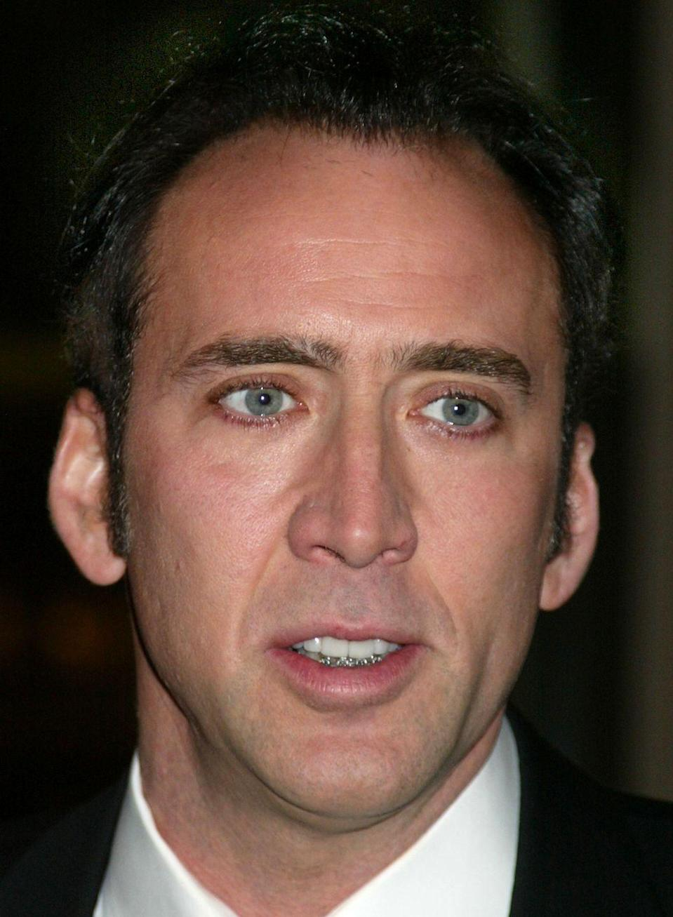 """<p>You may not realize Nicolas Cage got braces put on <a href=""""https://kingssmiles.com/celebritys-orthodontic-journey-7-nicolas-cage/"""" rel=""""nofollow noopener"""" target=""""_blank"""" data-ylk=""""slk:when he was in his 40s"""" class=""""link rapid-noclick-resp"""">when he was in his 40s</a> because they were only on his bottom teeth.</p>"""