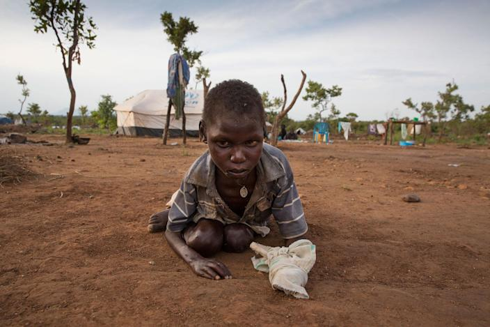 <p>SEPT. 23, 2016 — At the Pagarinya refugee camp in Adjumani District in Gulu, Uganda, September 2016, Jeffrey Michael, a severely disabled boy crawls in the dirt near his tent. For the mentally handicapped living in the refugee camp is a constant struggle to get proper medication, and wheelchair access. Onward Struggle: A refugee crisis in Uganda deepens as South Sudanese Refugees are forced to leave their country behind. The outbreak of violence in the capital Juba last July created a humanitarian crisis in northern Uganda as thousands of South Sudanese sought refugee there. The country is hosting the lion's share of South Sudanese refugees, with 373,626, more than a third of them arriving since early July. The fighting was a major setback to peace efforts in South Sudan, coming as the troubled new nation prepared to celebrate its fifth anniversary, amid a short lived peace deal between supporters of President Salva Kiir and former First Vice President Riek Machar. South Sudan now joins Syria, Afghanistan and Somalia as countries which have produced more than a million refugees. While some South Sudanese may attempt to head for Europe, the numbers within east Africa are comparable in scale to recent refugee flows to Europe from the Middle East, and their traumatic experiences due to war are often just as hellish. More than 85 percent of the refugees in this recent influx are women and children. Many children have lost one or both of their parents, some forced to become primary caregivers to siblings. With the large influx of refugees in July 2015, relief agencies had to implement stringent food rationing in the refugee settlements. Currently the international humanitarian organizations lack the necessary funds to meet the needs of the more than 200,000 refugees. (Paula Bronstein) </p>