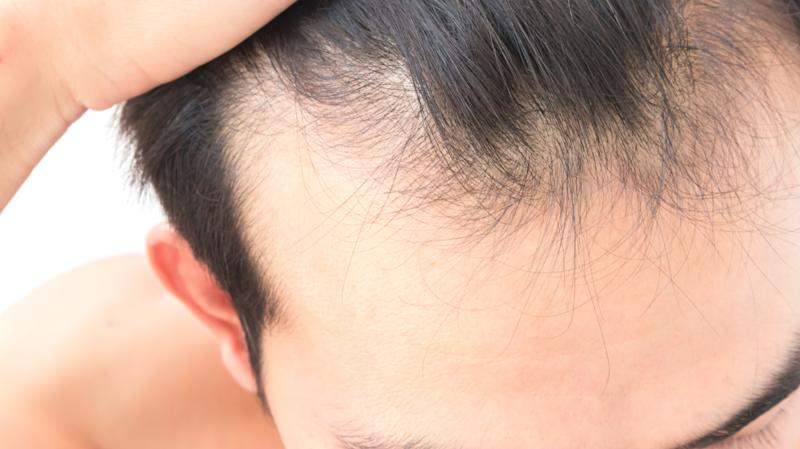 High Section Of Man With Receding Hairline