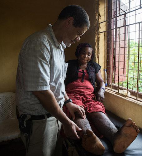 Dr. Frank Richards, director of the Carter Center's lymphatic filariasis program, examines Ndidi Ekeanyawu's legs at a health clinic. (The Carter Center / R McDowell)