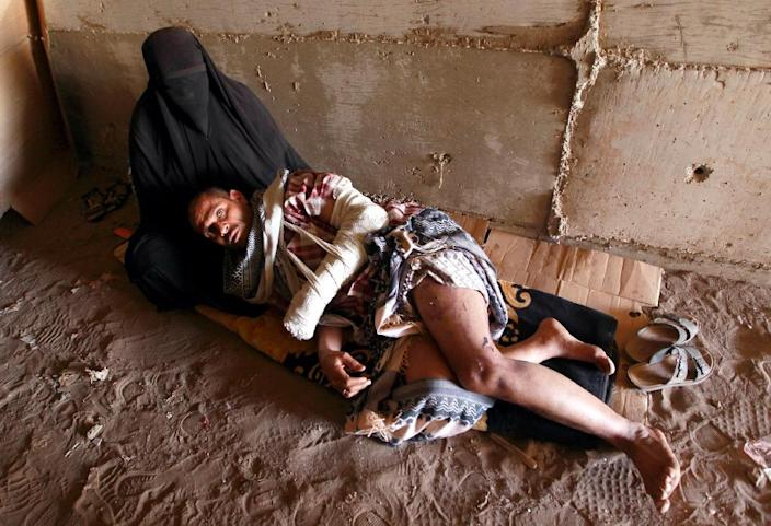 A Yemeni man who was wounded in an air strike rests in a man made underground water tunnel where he is taking shelter with his family after their houses were destroyed by air strikes carried out by the Saudi-led alliance, in the Yemeni capital, Sanaa (AFP Photo/Mohammed Huwais)