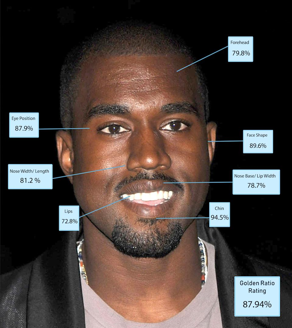 According to Dr De Silva Kanye scored highly for his eye spacing and his chin but was marked down for his face shape. [Photo: Dr Julian De Silva]