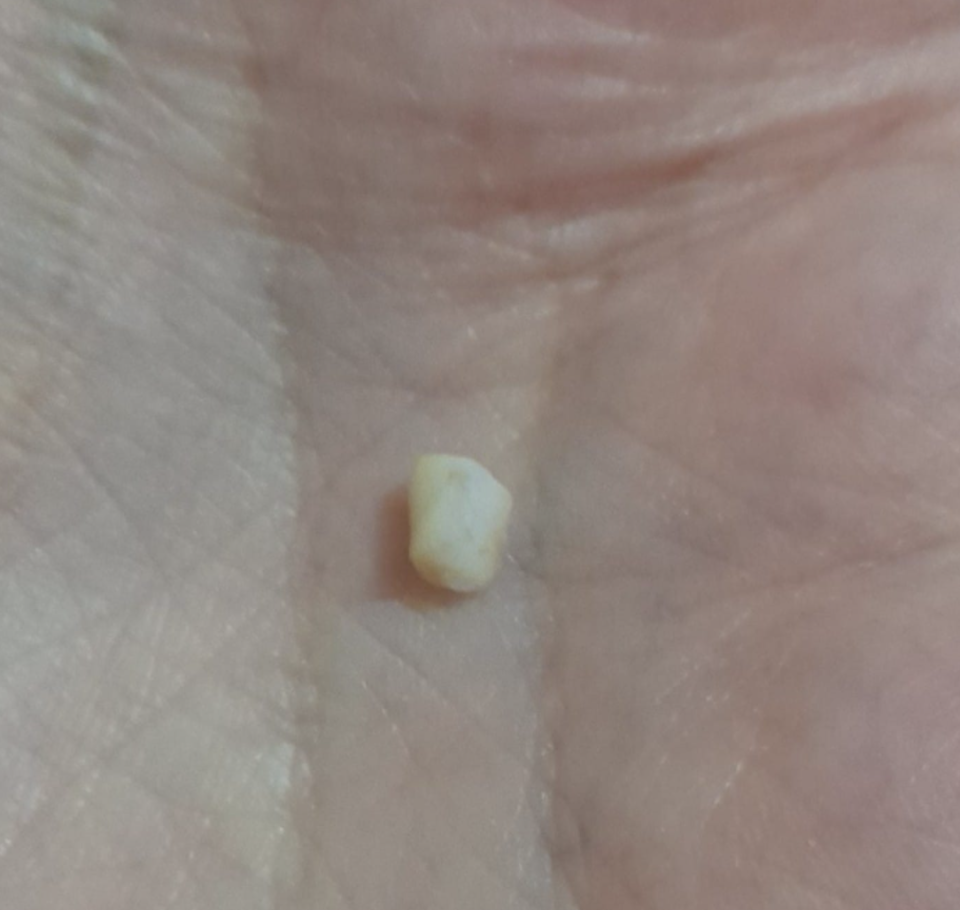 Small white object pulled from a Coles party sausage roll.