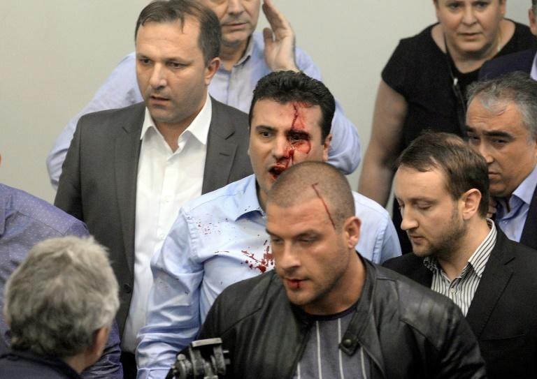 Opposition Social Democrats leader Zoran Zaev, now Prime Minister, was injured after  protesters entered the Macedonia parliament on April 27, 2017