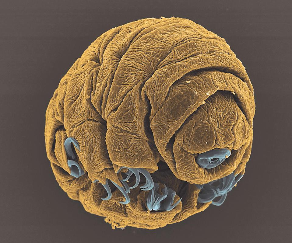 <p>The image depicts a 50-hour-old embryo of the species Hypsibius dujardini, taken with a scanning electron microscope at a magnification of 1800x. The embryo in the image is approximately 1/15 of a millimeter in length. It was named as runner up in the Micro-imaging category. (PA) </p>