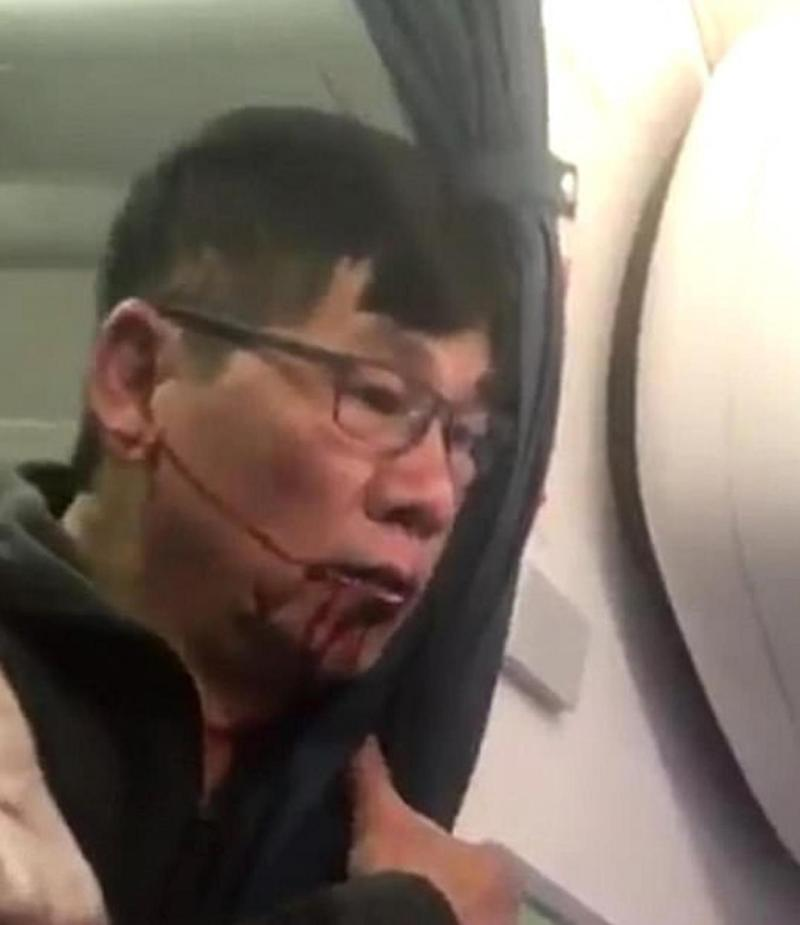 The man was left bleeding from the mouth after being dragged from the plane