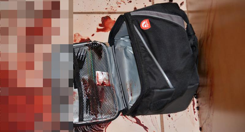 Chad Amato's lunchbox lies in a pool of blood in the family's kitchen, near where his body was found.