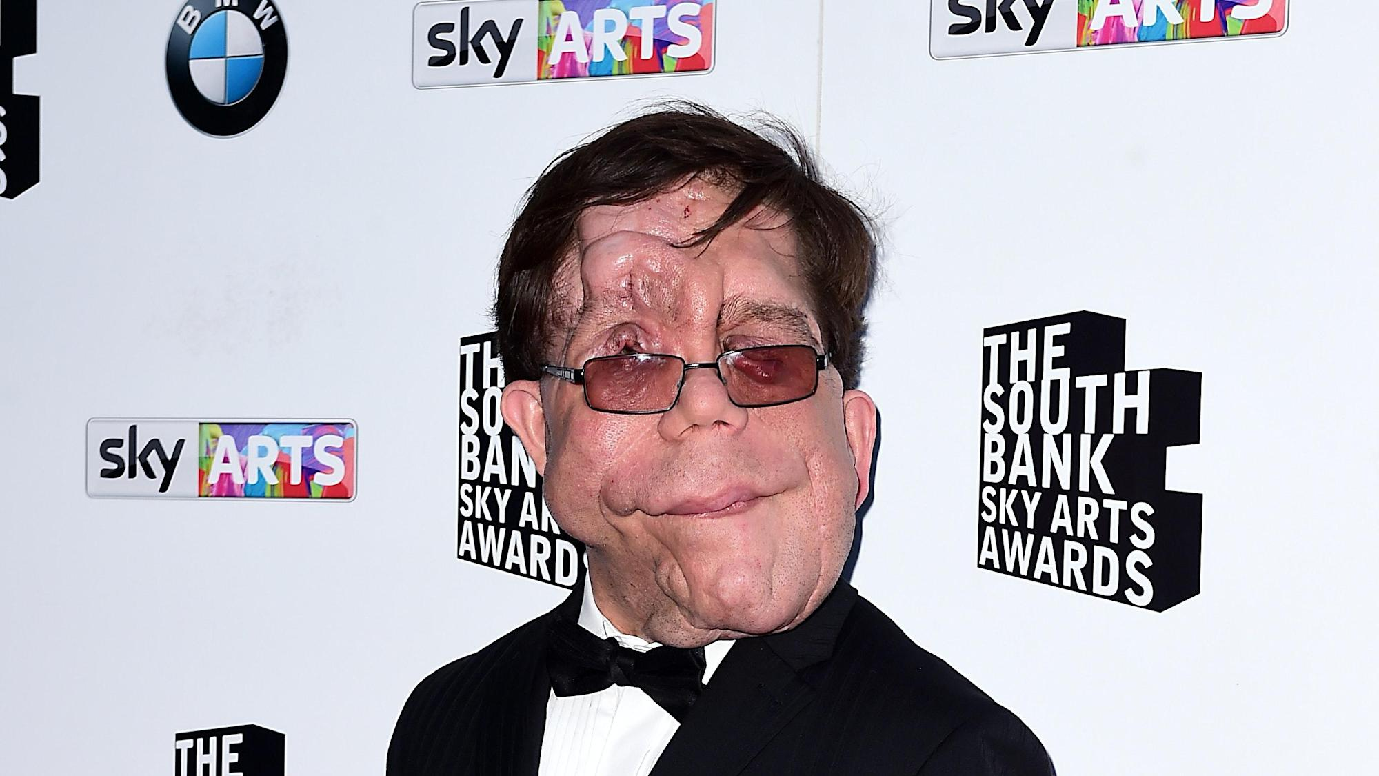 I got sick of being asked why I wasn't wearing a mask, says actor Adam Pearson