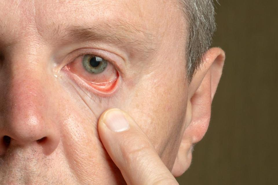 male eye with reddened eyelid and cornea, conjunctivitis