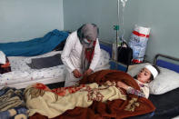 An injured girl is treated at a hospital after a car bomb attack in Herat province, west of Kabul, Afghanistan, Saturday, March 13, 2021. A powerful car bomb killed at least eight people and injured 47 in Afghanistan's western Herat province, officials said Saturday. (AP Photo/Hamed Sarfarazi)
